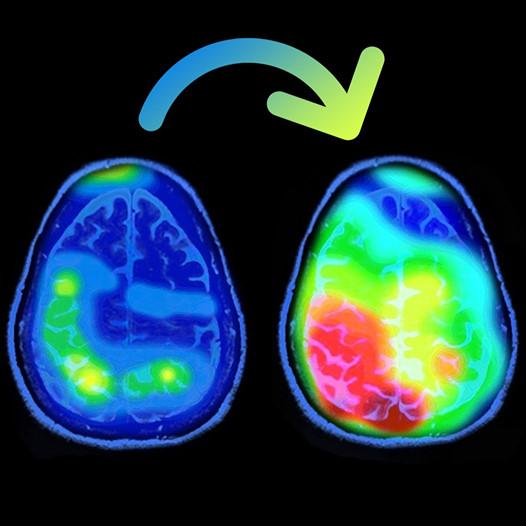activation neuronale