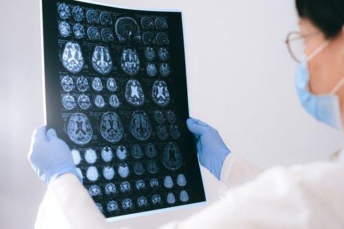 Maladie de Parkinson et Hypnose